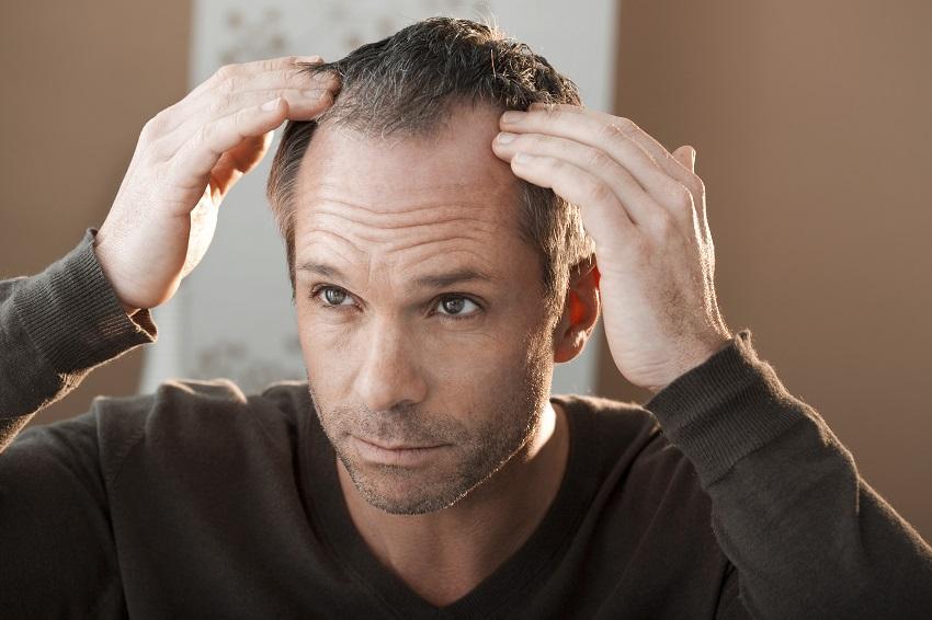 Herkes saç ekimi yaptırabilir mi