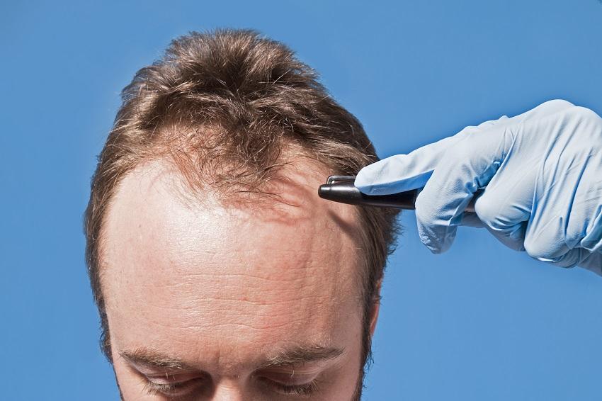 saç ekimi kaç kere yapılabilir