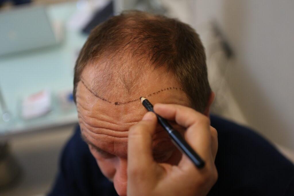 Saç ekimi ne kadar sürer